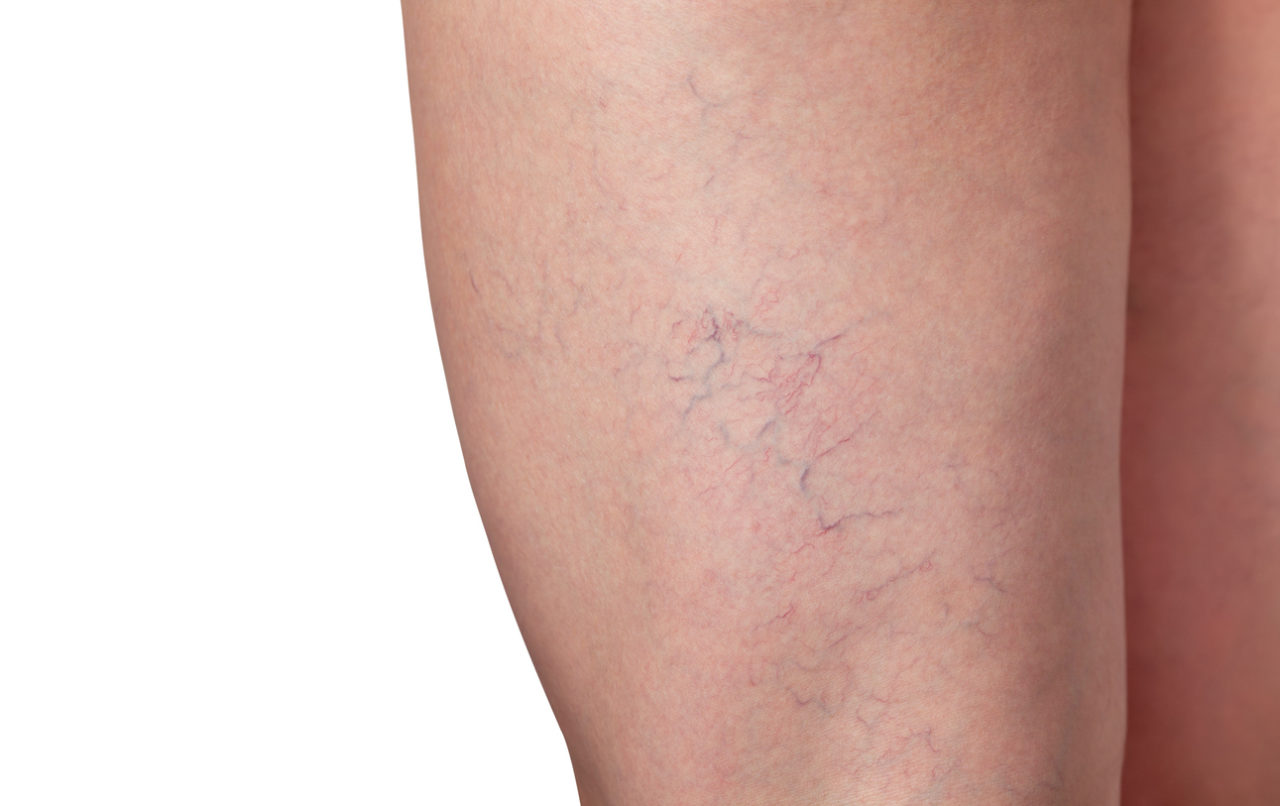 Varicose veins and capillary veins in the legs. Medical inspection and treatment of Telangiectasia.